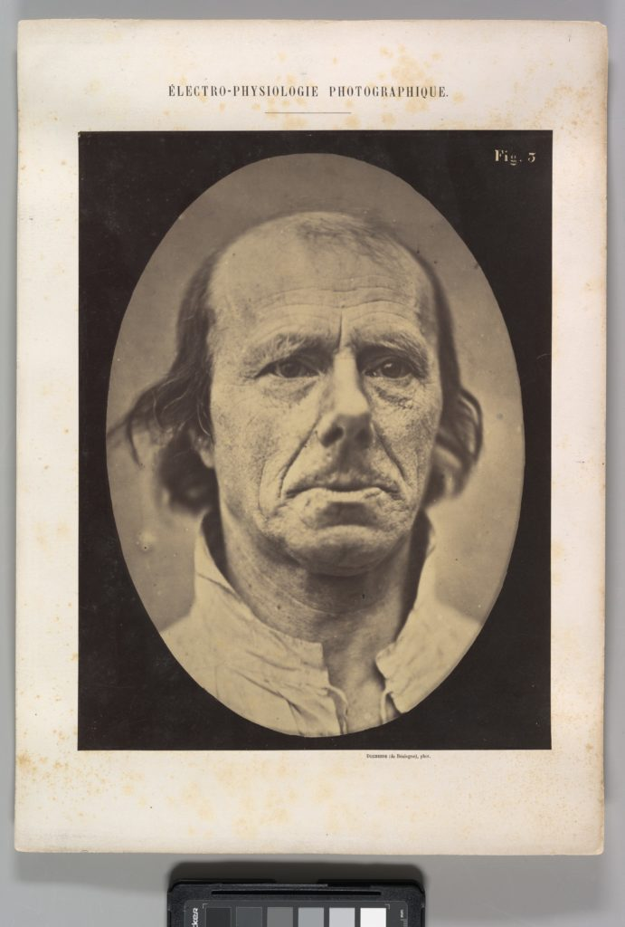 Figure 3: The face of an old man... photographed in repose.